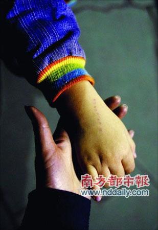 广州一幼儿园老师针扎5岁男童 全身扎了20多下