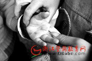 宁波4月5日出现首例手足口死亡病例